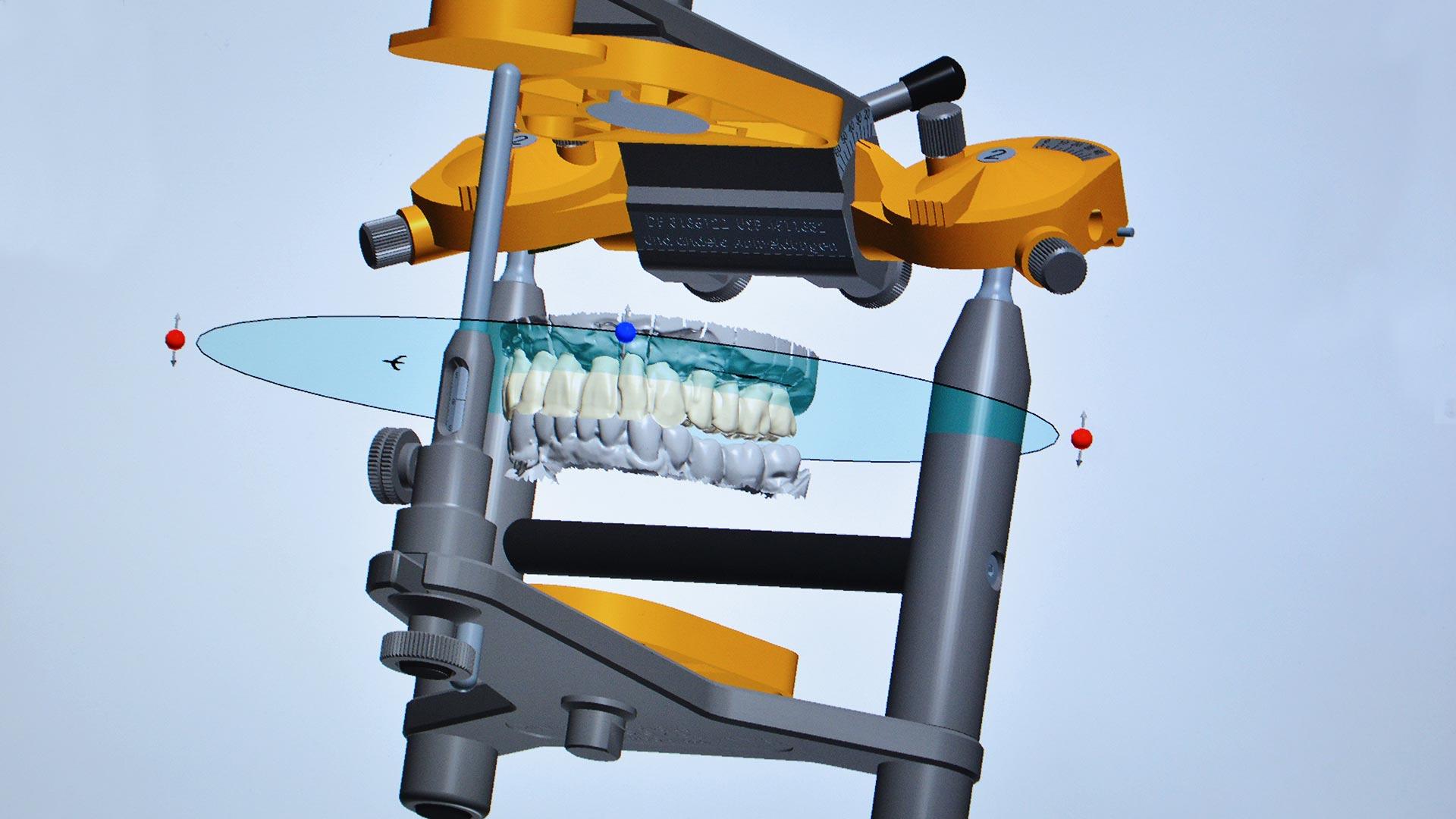 Computergesteuerte Implantologie Südtirol