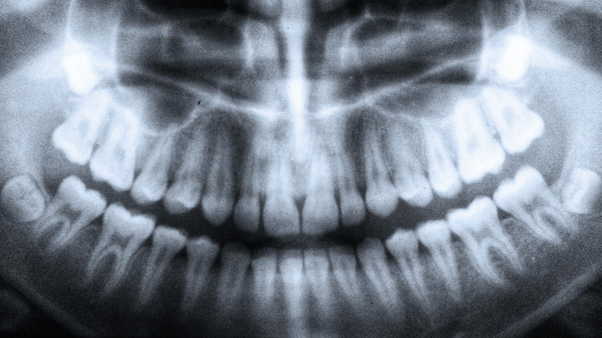 Röntgen Zahnarzt Südtirol